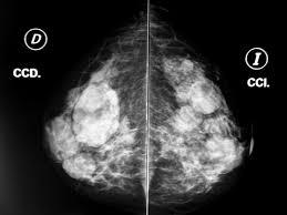 Nodulos BR3 en una Mamografía. Científicos desarrollan un guante con nanosensores para detectar el cáncer. (commons.wikimedia.org)