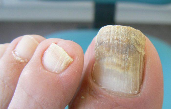 Hongos en las uñas de los pies: los 5 mejores remedios caseros ...