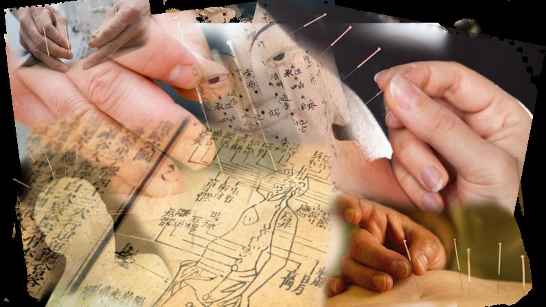 Ecomedicina con acupuntura en la tradición china. (getty images/creative)
