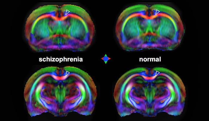 Esquizofrenia precoz se revela en imágenes del cerebro | Cerebro ...