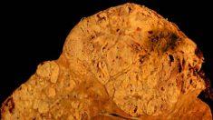 Niveles bajos de selenio se asocian con el desarrollo de cáncer de hígado