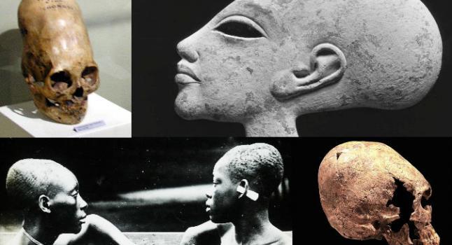 Arriba a la izquierda: Un cráneo alargado de Paracas, Perú. Arriba a la derecha: Esta cabeza de mujer tiene un cráneo alargado, y probablemente es hija del faraón egipcio Akenatón (1351-1334 A.C.). Abajo a la izquierda: Esclavas del Congo, cuyas cabezas se habían alargado a través vendajes a una edad temprana, 1900-1915 D.C. Abajo a la derecha: cráneo alargado de una mujer joven en el museo de Historia de Yverdon. (Wikimedia Commons)