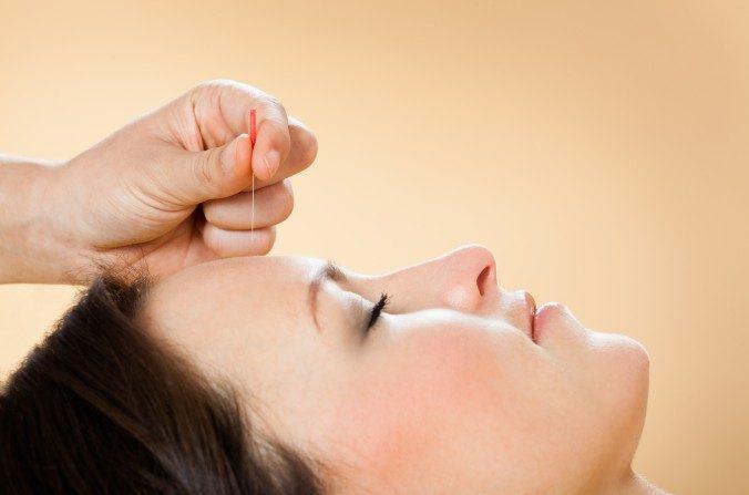Cómo la acupuntura puede ayudarle a disminuir la ansiedad