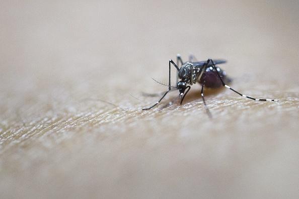 El Zika se vincula con la microcefalia en bebés, defecto congénito que hace que la cabeza sea anormalmente pequeña, lo que puede generar dificultades de desarrollo intelectual y físico. (Foto: YE AUNG THU/AFP/Getty Images)