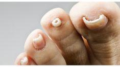 Los 5 mejores remedios caseros para los hongos en las uñas de los pies