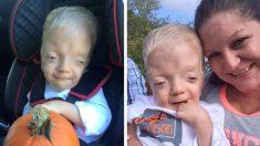 Madre responde cuando convierten la foto de su hijo con enfermedad terminal en un cruel meme