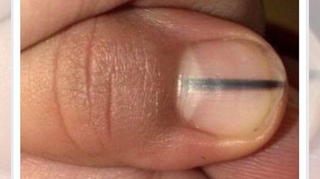 Estilista de uñas ve la marca negra en la uña de una mujer y le dice que vea de inmediato al médico