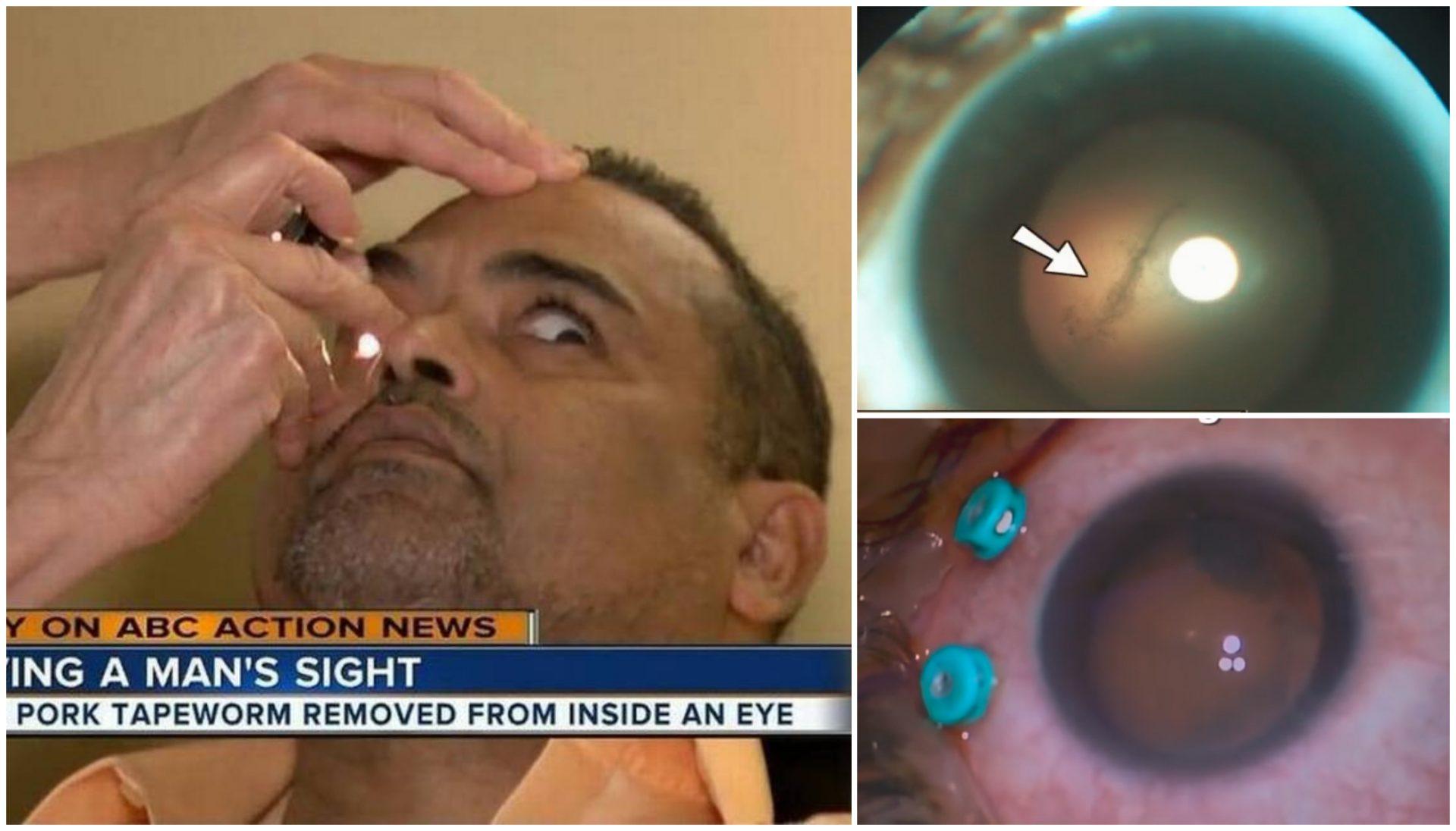 Este paciente veía un punto negro. En el hospital le encontraron un gusano 'devorador' de cerebros