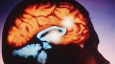 ¿Qué es la ameba 'come cerebros' y cómo podríamos evitarla?