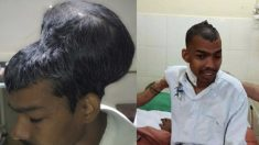 Médicos extirpan gigantesco tumor de la cabeza de joven indio