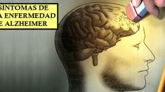 7 síntomas comunes que pueden ser signos tempranos de la enfermedad de Alzheimer