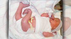 Una niña nace con las rodillas invertidas, años después vuelve al hospital y todos quedan sin palabras