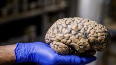 Hallan método para prever discapacidades en pacientes con esclerosis múltiple