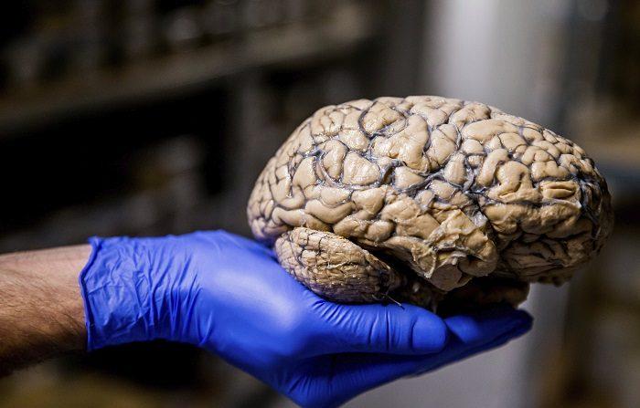 Un grupo de investigadores ha desarrollado una técnica capaz de predecir discapacidades en pacientes con esclerosis múltiple (EM) al observar los niveles de hierro en sus cerebros, según un estudio publicado hoy en la revista especializada Radiology. EFE/Archivo