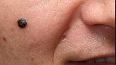 Un nuevo examen de sangre promete detectar los melanomas desde su inicio