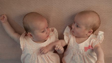 Este raro nacimiento de gemelos es uno en un millón: un bebé tiene síndrome de Down y el otro no
