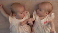 Estas gemelas que compartían una placenta y un saco amniótico salen del útero tomadas de la mano