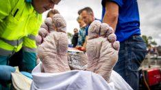 Nada 163 km recaudando fondos contra el cáncer: así quedaron sus manos y pies por su heroico esfuerzo