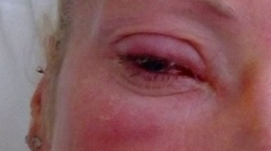 Mamá queda ciega de un ojo después que un parásito se esconde trás su lente de contacto y se devora la córnea