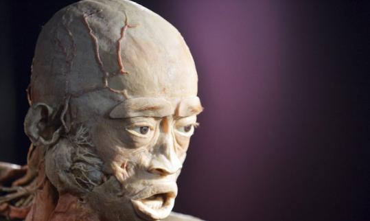 La plastinación, utilizada para los cadáveres en la exposición Real Bodies, es el proceso de usar goma de silicona líquida para evitar el proceso natural de descomposición del cuerpo. El cadáver de arriba es de una exposición previa llamada 'El cuerpo humano' en Kiev, Ucrania y es una foto de archivo. (Sergei Supinsky / AFP / Getty Images)