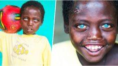 Aunque en la escuela se burlan de él, el mundo ama los increíbles ojos azules de este niño etíope