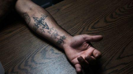 Argentina: Joven toma radical decisión y se borra tatuaje del brazo con un rallador de queso