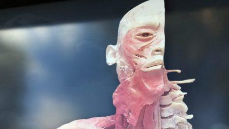 Asociaciones de profesionales instan al gobierno de Australia a investigar la controvertida exhibición 'Real Bodies'