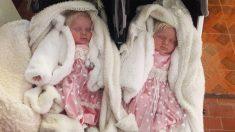 Nacen gemelas albinas con pelo blanco como la nieve y se vuelven una sensación en Argentina