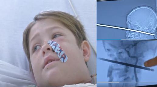Niño sobrevive a un pincho para asar carne que le atraviesa su cuello y cabeza