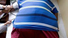 Un estudio de la Universidad de Pensilvania identifica el efecto de los microbiomas en la obesidad