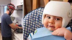Este bebé y su familia usan cascos en casa. La razón conmoverá tu corazón