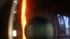 Muerte de meteoróloga de Fox revive dudas por suicidios tras misma cirugía ocular con láser