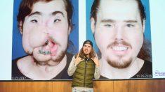 Su intento de suicidio lo desfiguró: ahora con un trasplante de cara recuperó la sonrisa