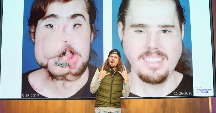 Un trasplante de cara le salvó la vida a un joven
