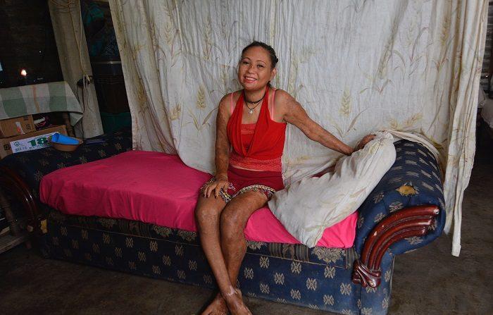 Fotografía del 26 de enero de 2019, que muestra a la joven Alicia Cruz, afectada por la explosión de un camión cisterna, en su casa en el poblado de Palo Mulato, municipio de Huimanguillo, en el estado de Tabasco (México). Tres años después de la muerte de 24 personas que extraían ilegalmente combustible de un camión cisterna accidentado, no disminuye el robo de hidrocarburos cerca de la comunidad de Palo Mulato, estado mexicano de Tabasco. EFE/Jaime Avalos