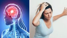 Estos 7 signos te advierten un mes antes de un derrame cerebral