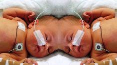 Conoce la milagrosa historia de 2 gemelas que nacieron unidas y que sobrevivieron a la separación