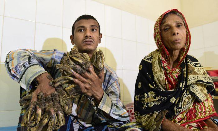 """Abul Bajandar (izq.), de 26 años, apodado """"Hombre árbol"""" por las enormes verrugas en forma de corteza en sus manos y pies, está sentado en el Hospital del Colegio Médico de Dhaka, en Dhaka, el 31 de enero de 2016. (Munir uz Zaman/AFP/Getty Images)"""