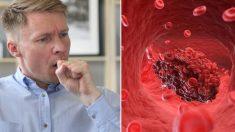 ¿Toses pero no estás resfriado? Estos 8 síntomas de coágulos sanguíneos podrían salvarte la vida