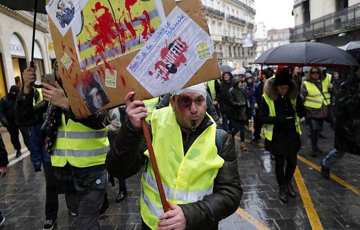 """Un manifestante con heridas en el ojo y en la cabeza participa en la manifestación """"Acto XII"""" (la duodécima protesta nacional consecutiva de un sábado) dedicada a las víctimas del movimiento en Montpellier, Francia, el 2 de febrero de 2019. Los llamados'gilets jaunes' (chalecos amarillos) son un movimiento de protesta popular con partidarios de un amplio espectro político, que comenzó originalmente con protestas en todo el país a finales de 2018 contra los altos precios del combustible. Mientras tanto, el movimiento también protesta contra las reformas fiscales del gobierno francés, el aumento del coste de la vida y algunos incluso piden la dimisión del presidente francés Emmanuel Macron. (Protestas, Francia) EFE/EPA/GUILLAUME HORCAJUELO"""