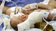 Estas siamesas nacieron unidas por el pecho. Míralas 3 años después de ser operadas