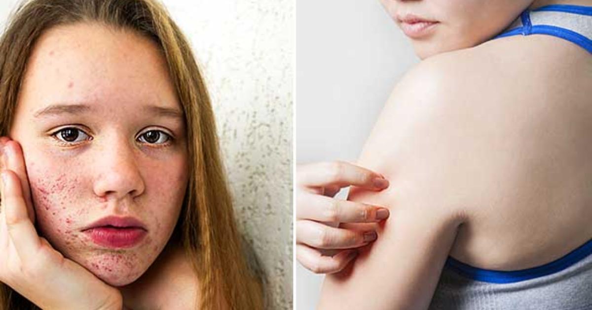 Picores en la piel y menopausia