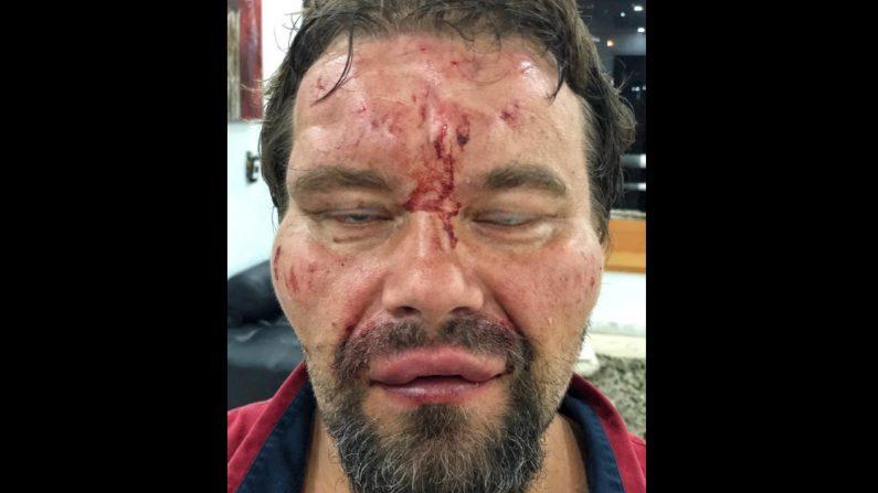 Venezuela: policía chavista detiene y da golpiza al periodista polaco Tomasz Surdel
