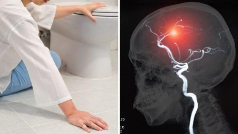 Señales de un derrame cerebral (Crédito: Toa55 | By create jobs 51/Shutterstock)