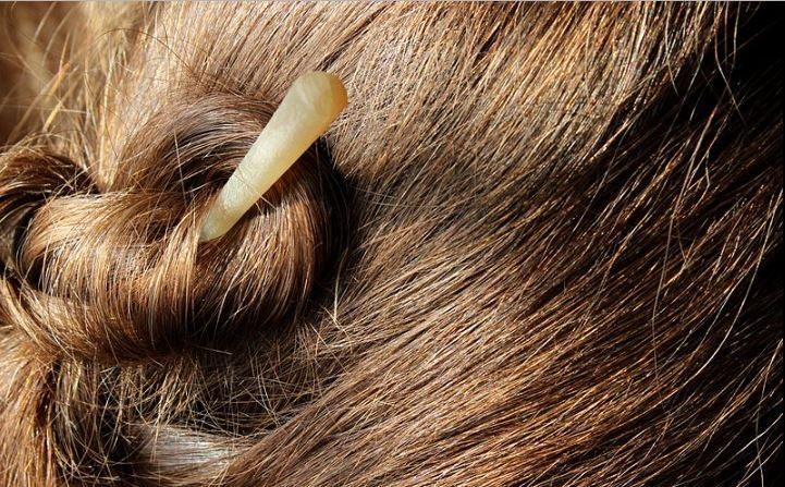 El estrés puede causar una caída de cabellos importante. (Wikimedia Commons)