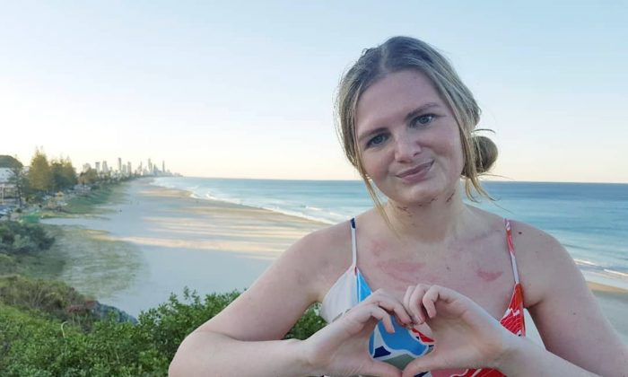 Caitlin Alsop, sobreviviente de angina de Ludwig, de Gold Coast, Australia, el 19 de agosto de 2018. (Caitlin Alsop/Facebook)