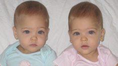 """Las gemelas """"más hermosas"""" nacidas en 2010 se convirtieron en verdaderas estrellas. Así lucen ahora"""
