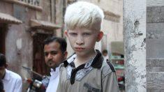 Un niño de 5 años que solía avergonzarse de su albinismo ahora es modelo para una marca de moda