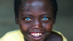 Niño etíope cuyos raros y asombrosos ojos azules lo hacen absolutamente único dice que Messi es como él