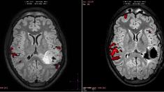 Médicos españoles curan la epilepsia tras trasladar el área del lenguaje a otra parte del cerebro